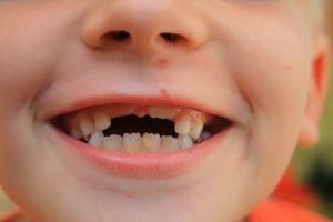 ¿La moda de operarse para parecerse a un famoso podría extenderse al dentista?