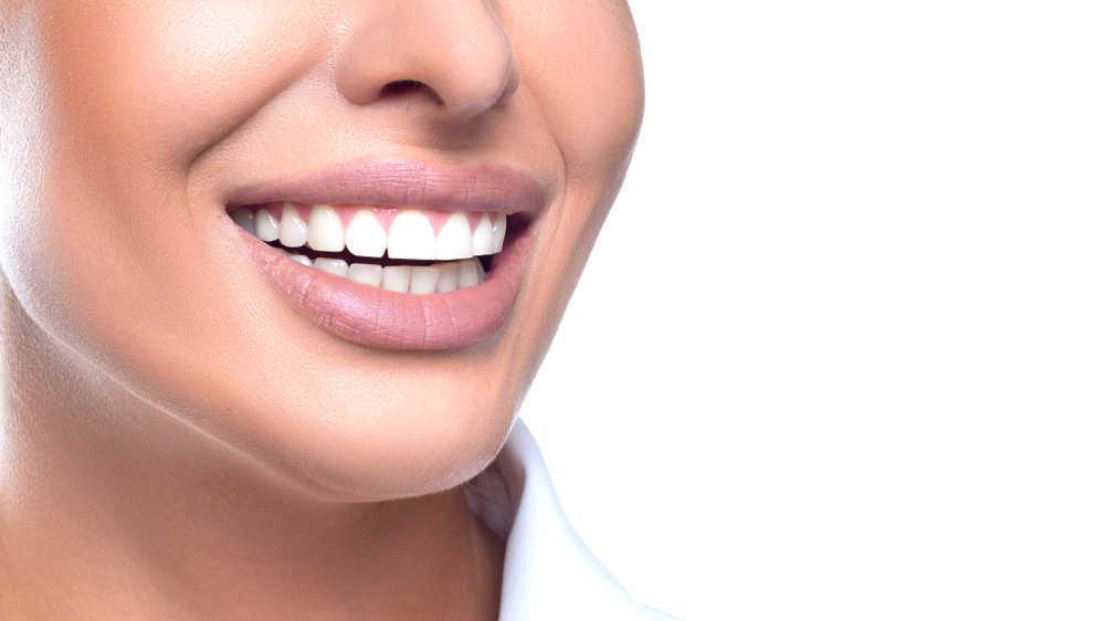 El blanqueamiento dental, una tendencia para cuidar de la salud dental