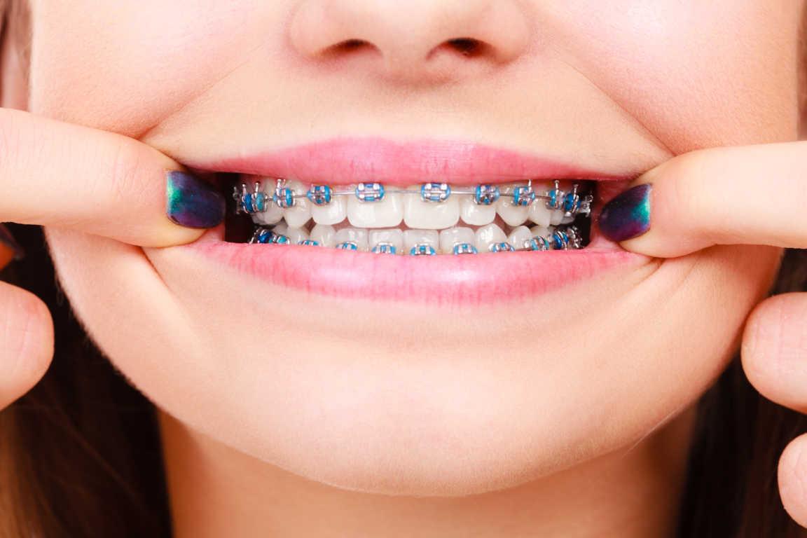 Los brackets autoligables facilitan la higiene de la cavidad oral y son más estéticos