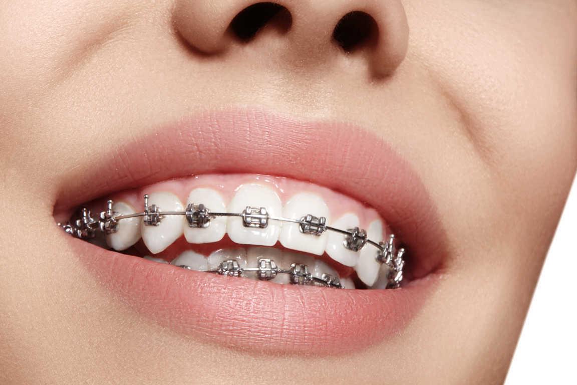 Conoce más sobre los brackets metálicos
