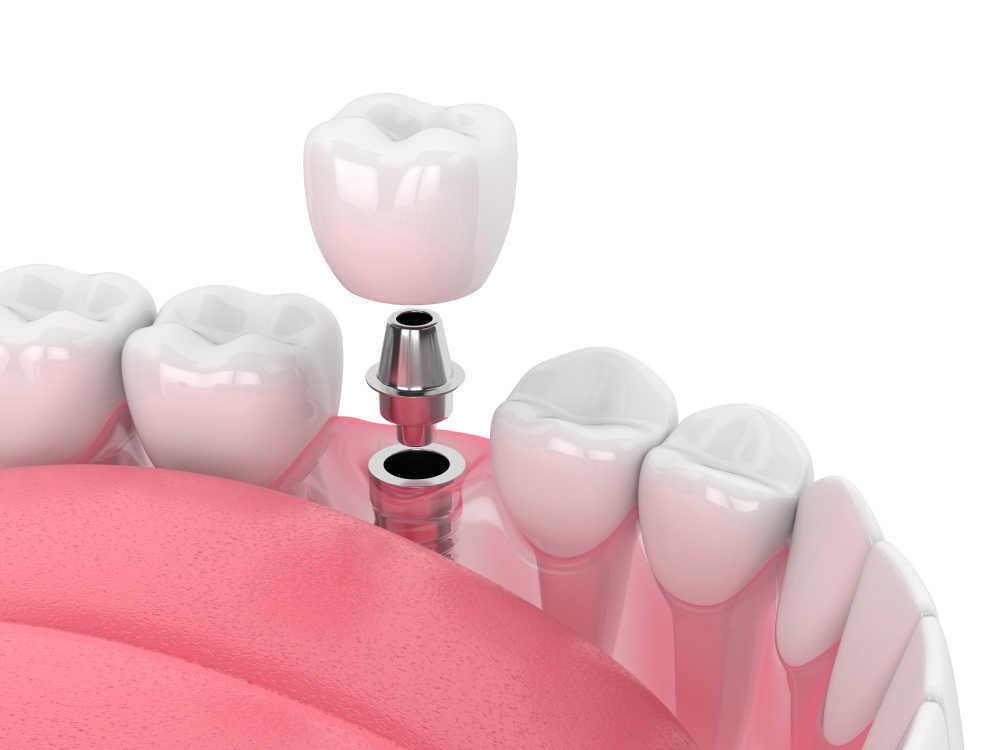 La implantología, tendencia en materia bucodental en plena sociedad de la imagen