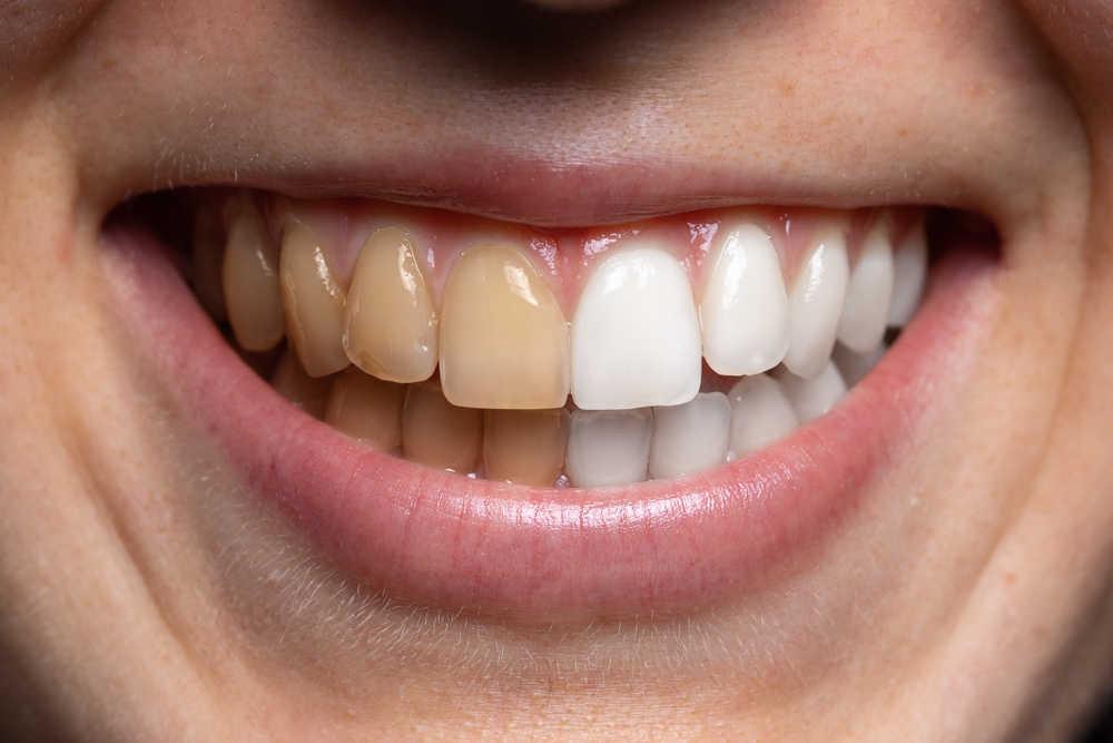 Combatir el color amarillo de nuestros dientes nos interesa más que nunca